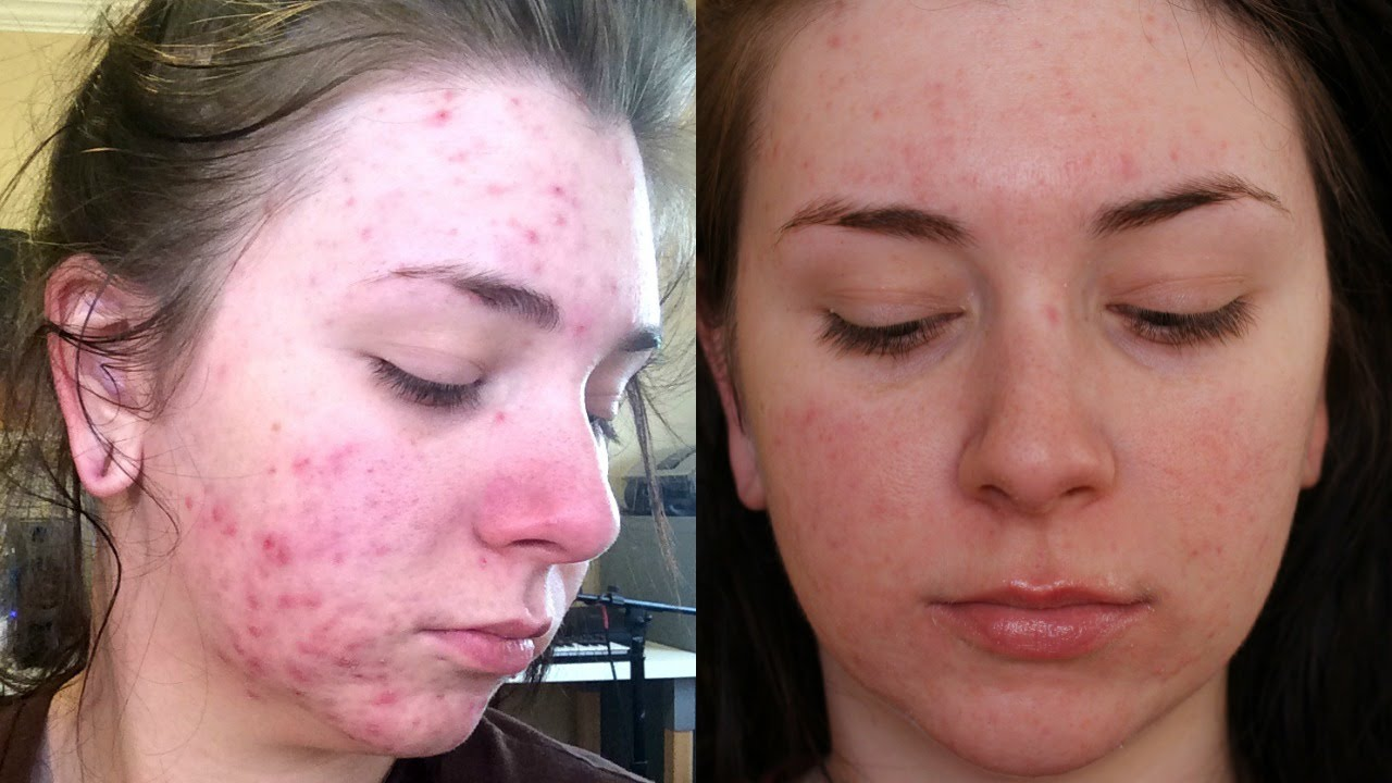 accutane skin redness